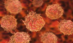 Un nuevo marcador genético ayuda a detectar cáncer de próstata agresivo