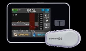 El páncreas artificial mejora los controles de glucosa de día y de noche