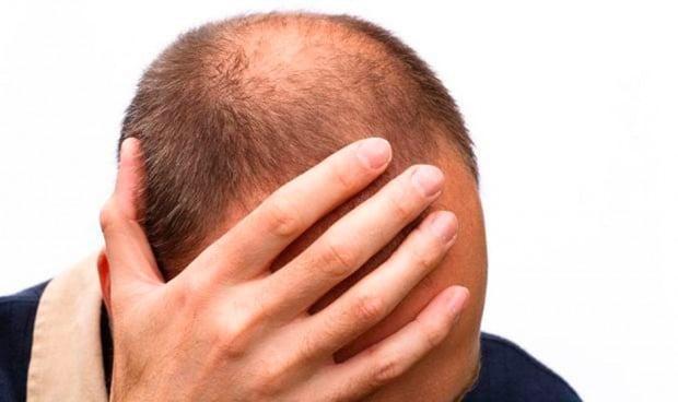El plasma rico en plaquetas es beneficioso para tratar la caída del cabello