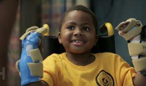El primer niño con trasplante doble de manos evoluciona bien