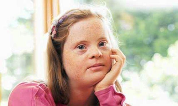 El síndrome de Down multiplica por 5 el riesgo de hidradenitis supurativa