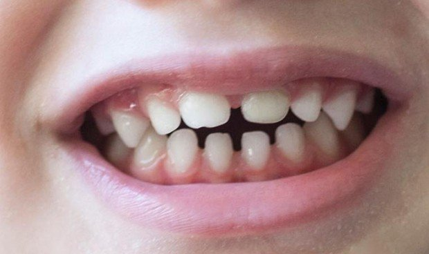 El TDAH y el autismo dejan su 'firma' en los dientes de leche