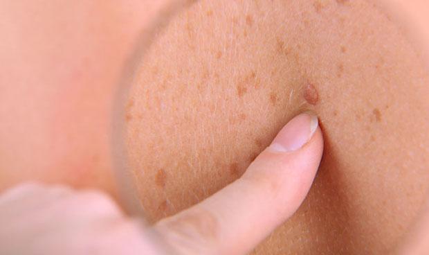 El teledermatoscopio mejora el diagnóstico de cáncer de piel