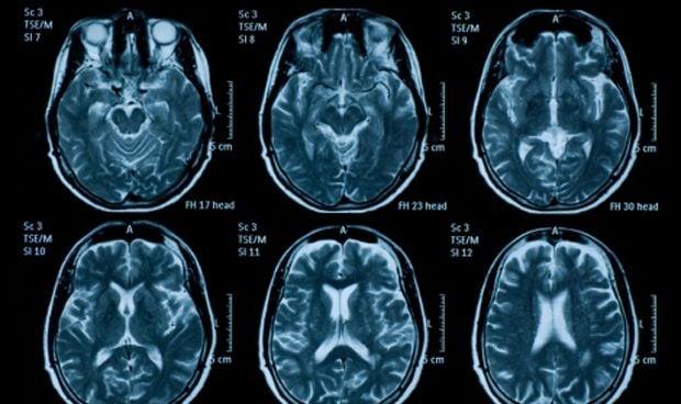 El trastorno del espectro autista está vinculado con la forma del cerebelo