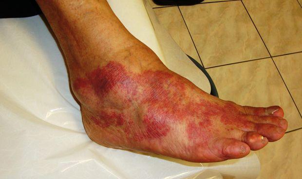 El tratamiento para la psoriasis, válido para la hidradenitis supurativa