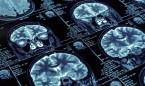 Elaboran un mapa completo de cómo el alzhéimer afecta al cerebro