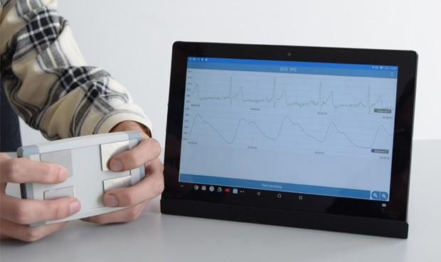 Electrocardiograma en un minuto y a través de un teléfono móvil