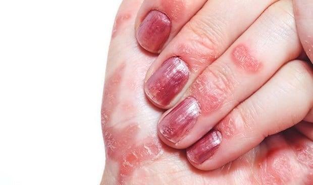 En artritis psoriásica: ¿qué es antes, la psoriasis o la artritis?