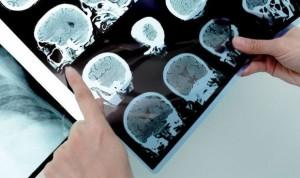 Cada año se diagnostican 1.200 nuevos casos de encefalitis en España