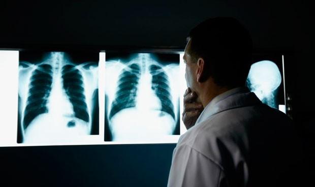 España, de los países europeos que menos invierten en cáncer de pulmón