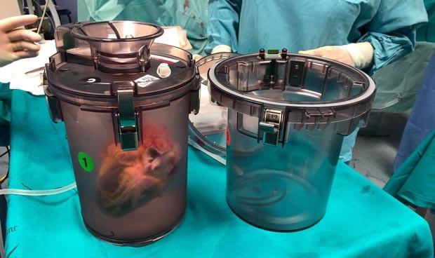 España estrena un revolucionario método para transportar órganos