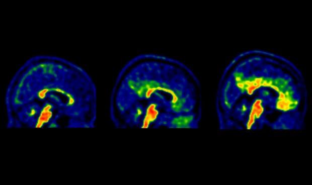 Establecen un umbral más bajo para comenzar la prevención del alzhéimer