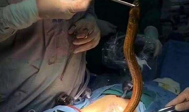 Este cirujano nunca imaginó que tendría que hacer una operación así