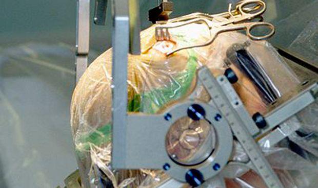 �xito de la estimulaci�n cerebral no invasiva en pacientes con p�rkinson