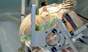 Éxito de la estimulación cerebral no invasiva en pacientes con párkinson
