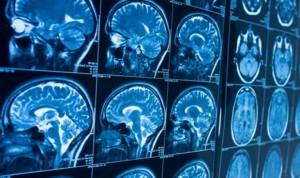La exposición infantil al plomo provoca cambios estructurales en el cerebro