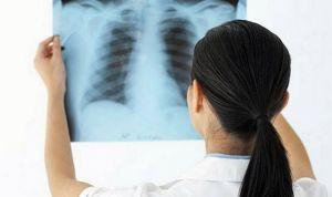 Falta comunicación entre médico y paciente en fibrosis pulmonar idiopática