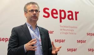 """Fernández Villar: """"Separ siempre apuesta por la cantera"""""""