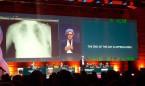 GE Healthcare lleva la inteligencia artificial al diagnóstico de neumotórax