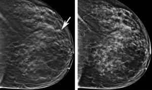 Google es capaz de detectar mejor el cáncer de mama que los radiólogos