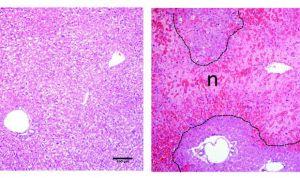 Hallado un posible biomarcador de lesiones hepáticas