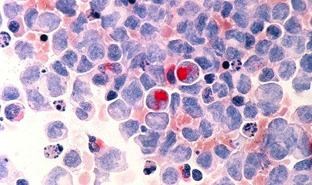 Hallan células que impiden la expansión de moléculas cancerígenas en sangre