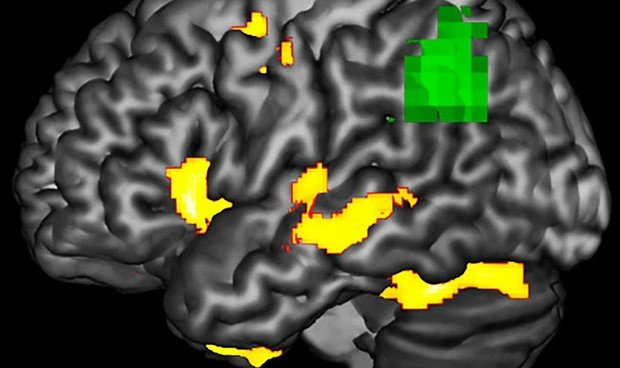 Hallan cómo detectar la neurodegeneración antes de que mueran las neuronas