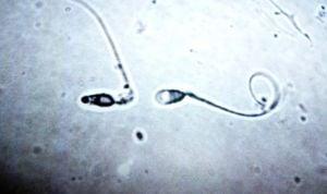 Hallan dos mutaciones en el esperma asociadas a las patologías cutáneas