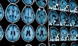 Hallan que un tipo de neurona puede favorecer el desarrollo de alzhéimer