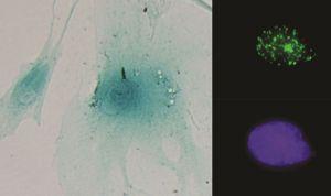 Hallan un circuito celular que aumenta el crecimiento del cáncer de colon