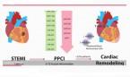 Hallan un posible marcador pronóstico de remodelado cardiaco tras infarto