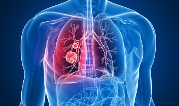 HLA Montpellier conciencia sobre la detección precoz del cáncer de pulmón
