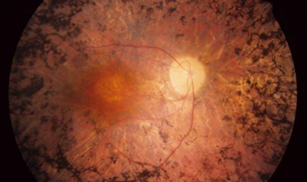 HLA Montpellier pone el foco sobre la retinosis pigmentaria