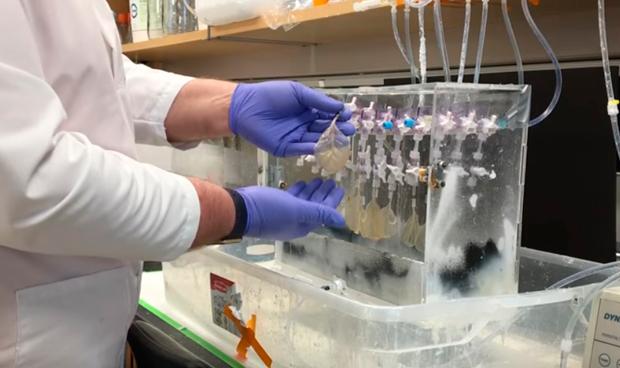 Hoja de espinaca: de la ensalada a regenerar el tejido del coraz�n humano