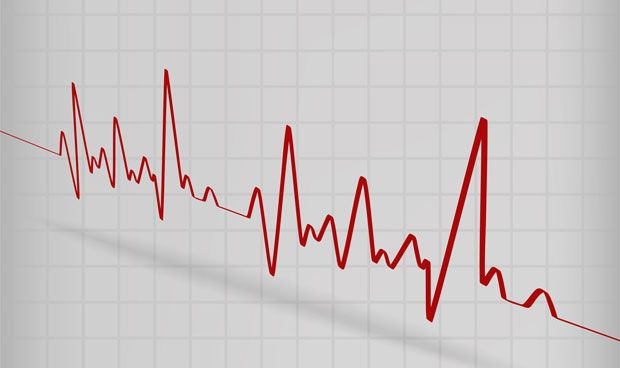 Identificadas nuevas causas de las arritmias cardiacas