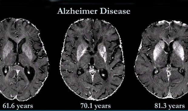 Identifican biomarcadores en sangre que avanzan el riesgo de alzhéimer