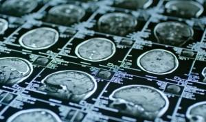 Las imágenes cerebrales predicen el estrés postraumático tras una lesión
