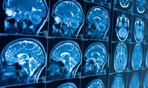 Imágenes del cerebro muestran más síntomas del Covid de lo esperado