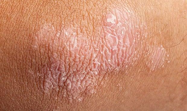 Las infecciones de la piel antes de los 2 años se vinculan con la psoriasis
