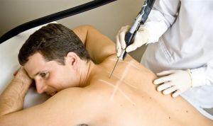 Intrusismo de los centros de estética en el campo de la Dermatología