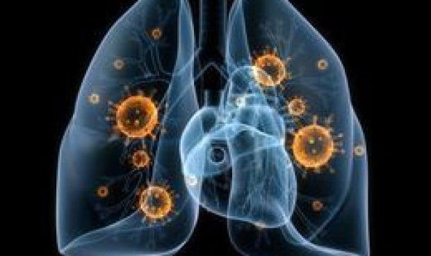Investigadores de EEUU descubren tres nuevos tipos de cáncer de pulmón