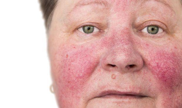 Investigan la prevalencia y la incidencia global de la rosácea