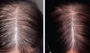 """La alopecia en pacientes con cáncer de mama es """"parcialmente reversible"""""""