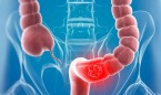 La biopsia líquida detecta un año antes las recaídas en cáncer de colon