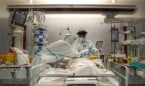 La broncoscopia permite confirmar el diagnóstico Covid con PCR negativa