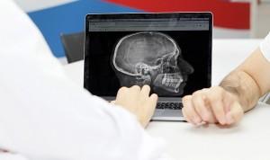 La cefalea, primera causa de consulta externa en Neurología