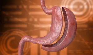 La cirugía bariátrica es eficaz para el hígado graso no alcohólico