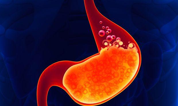 La cirugía bariátrica puede agravar los síntomas de reflujo gastroesofágico