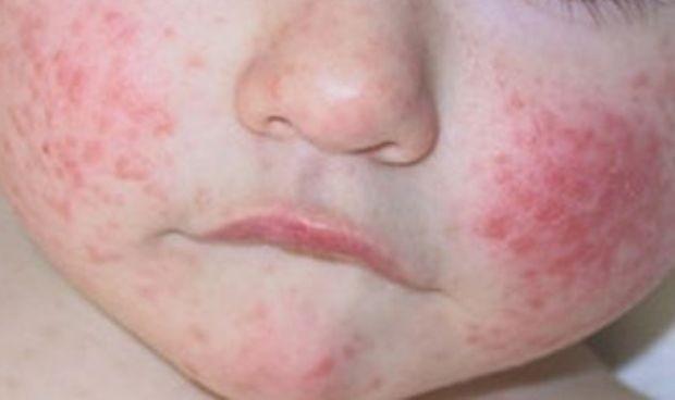 La dermatitis atópica también afecta a la salud mental de los niños
