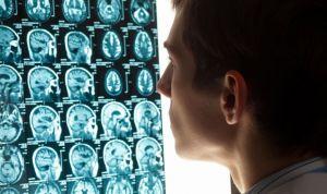 La disfunción mitocondrial, detrás del riesgo de glioblastoma en alzhéimer